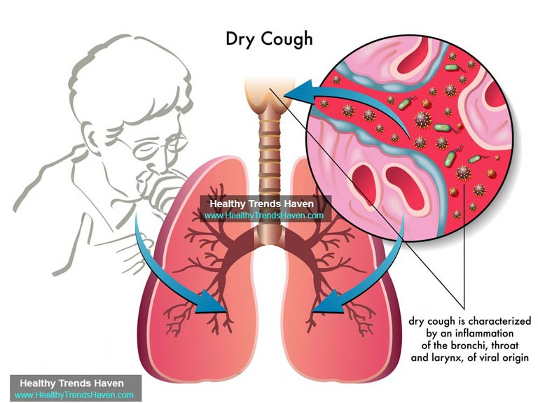 dry coughs