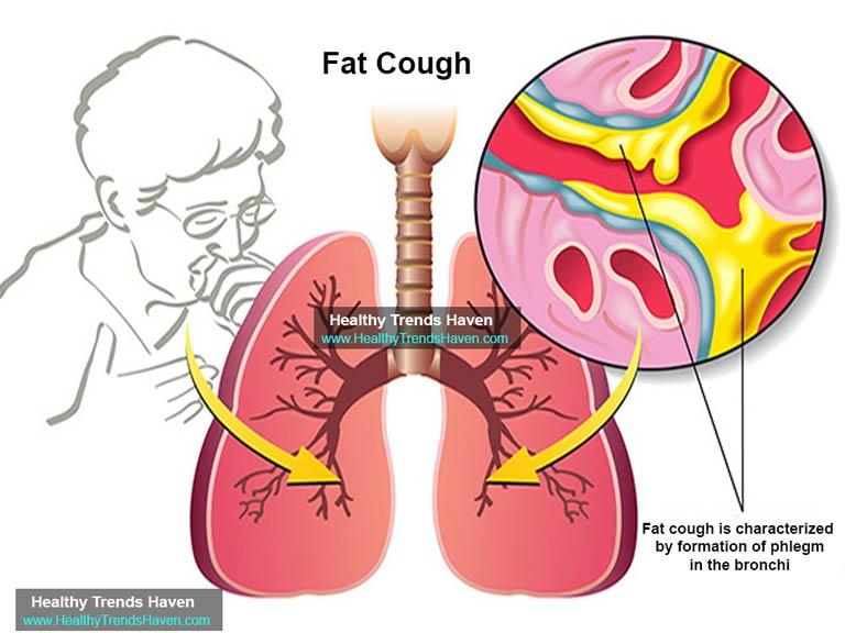 Fat coughs