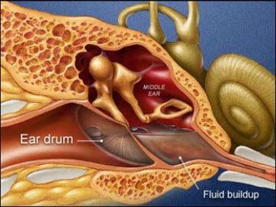 serous otitis